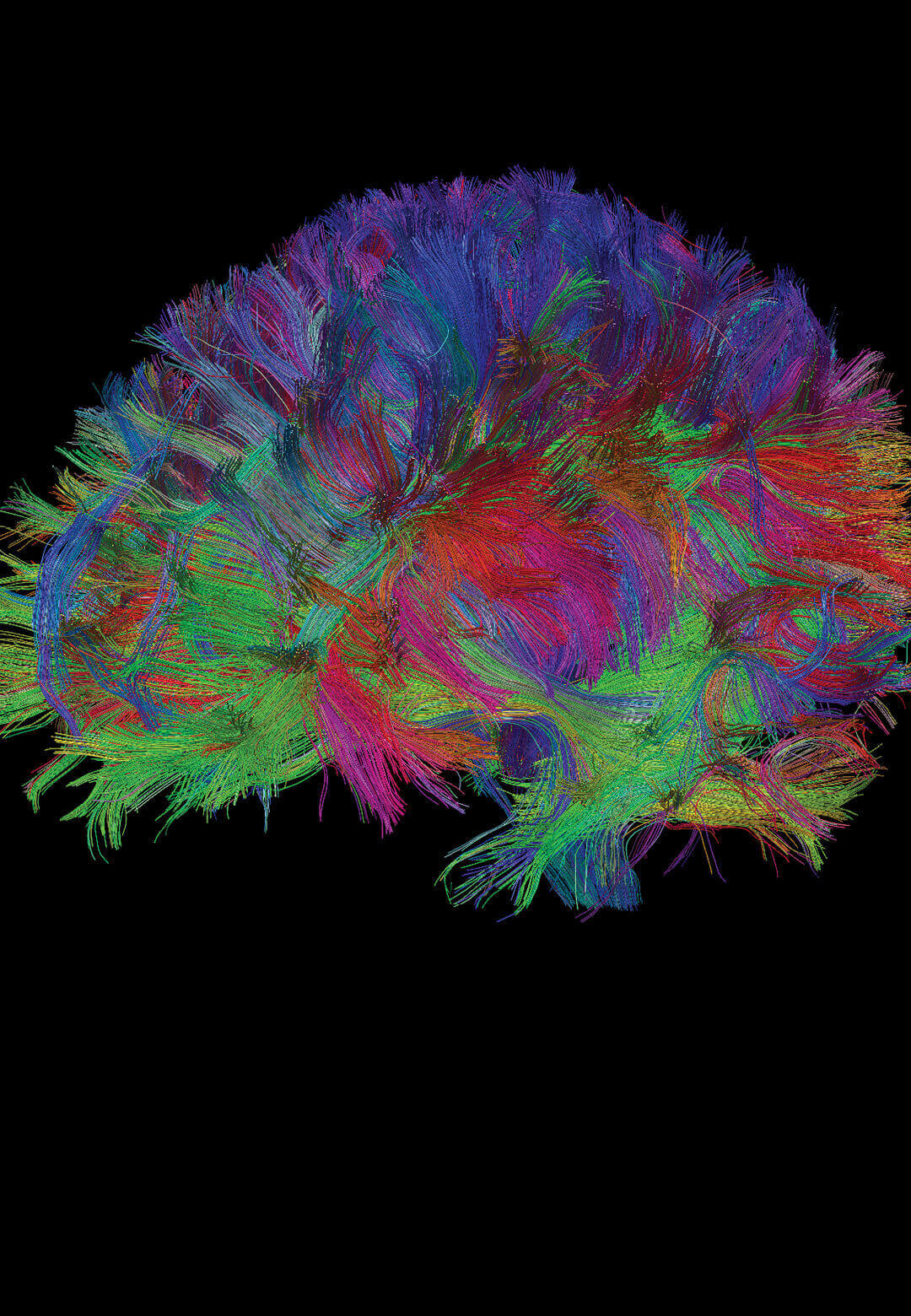 Our brains have always been the ultimate reference for perfection, with over 86 billion constituent neurons efficiently processing countless activities | Digital Legacies: Perfection | STIRworld